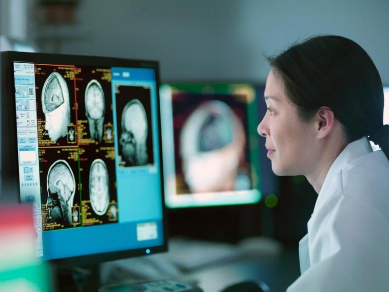 Image Mengenal Lebih Dalam Tentang Varian Tumor Otak - Medulloblastoma