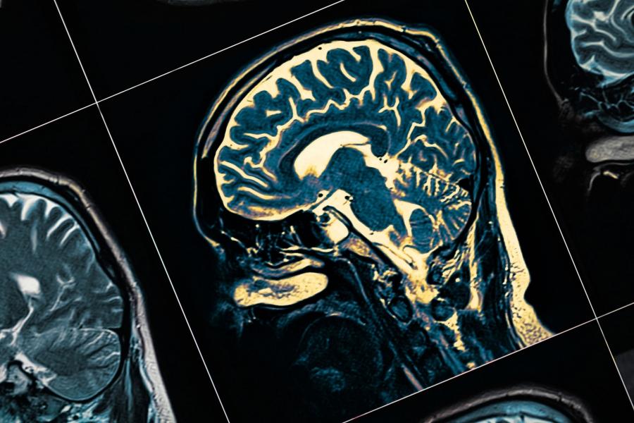 image Mengenal Lebih Dalam Tentang Varian Tumor Otak - Glioma