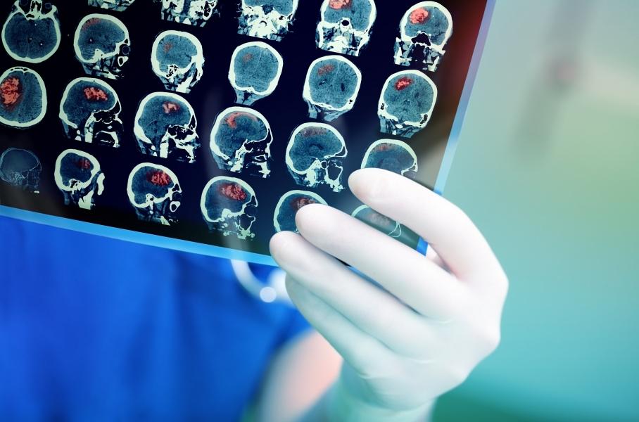 Image Kenali Lebih Dekat Tentang Aneurisma Otak - Brain Aneurysm